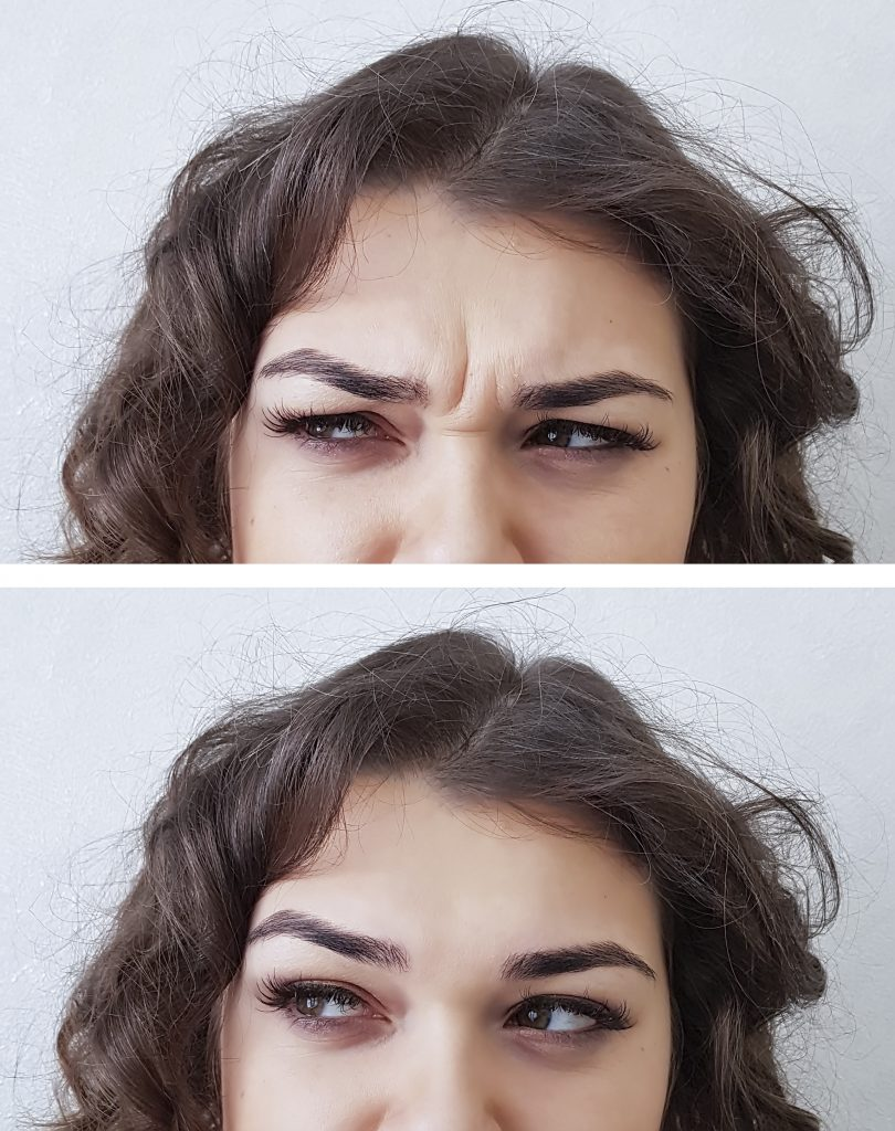forehead woman wrinkles before and after